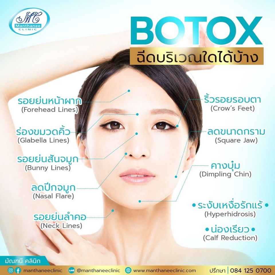 Let's take a look at what Botox can solve.