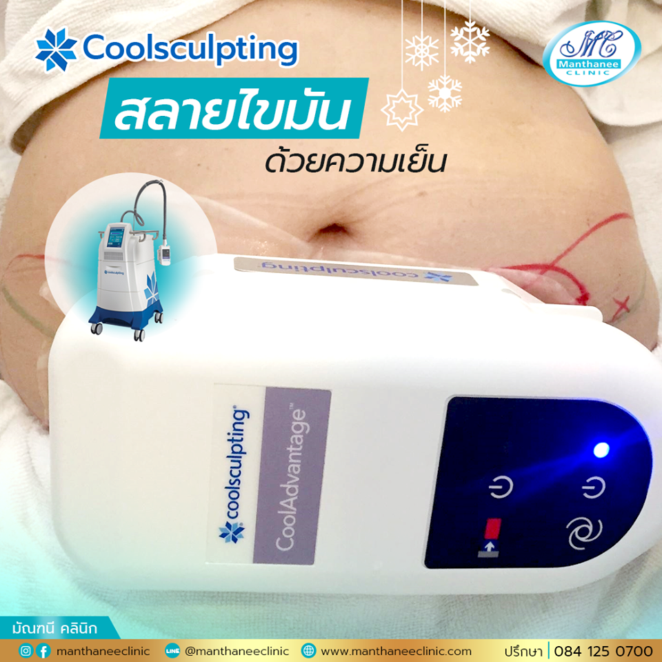Body fat freezing with Coolsculpting USA