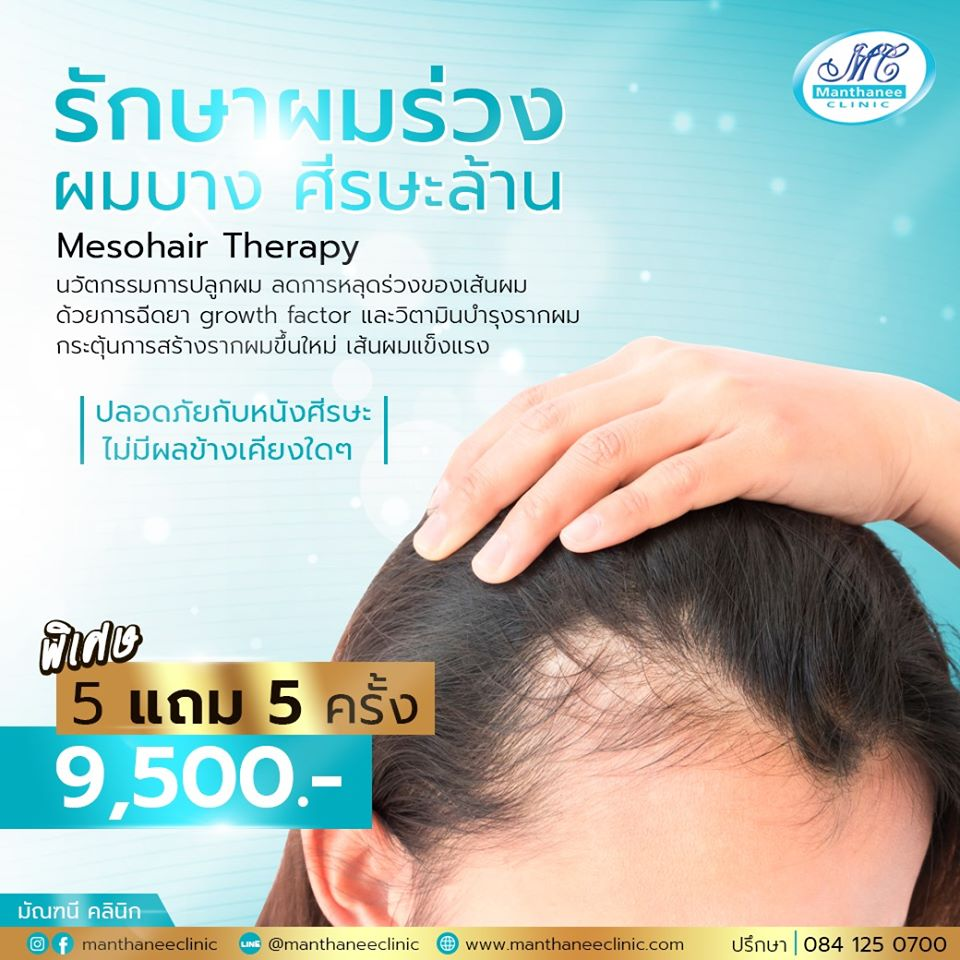 Mesohair Therapy